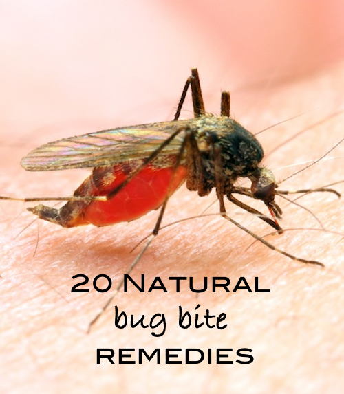 Summer Care Tip- 20 Natural Bug Bite Remedies | OnePartSunshine.com